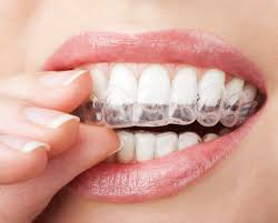 3900 invisalign braces coupon arizona family dental dentist