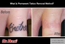 what is permanent tattoo removal method dr numb blog