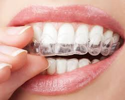 nickel free braces types of braces overland park olathe ks kansas city mo