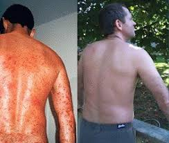 sun ls for psoriasis for sale our story solarc systems inc canada