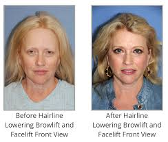 queen brooklyn hairline hairline lowering is often done for facial feminization the