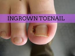 how to get rid of an ingrown toenail fast and even overnight