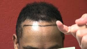 hair plugs for men black african american men california bald hair transplant surgery