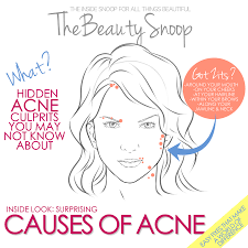 Causes Of Blind Pimples How Do Pimples Actually Form The Types And Causes Of Acne Why On