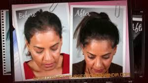 Women Hair Loss Treatment Vitamins For Hair Loss Alopecia Alopecia Areata Plastic