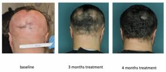 new hair growth discoveries drug restores hair growth in patients with alopecia areata