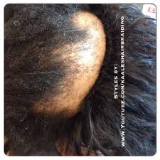 cover bald edges braid styles tree braids non surgical hair loss solutions