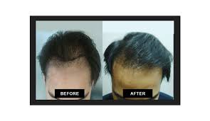 hair transplant in the philppines cost hair transplant philippines mj kristine bunagan md mph fpds