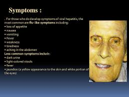 symptoms of hbv light colored stool liver mediated diseases and viral hepatitis