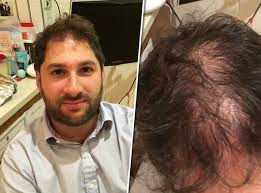 before and after thinning mens haircut miracle product cures baldness in under 10 minutes life life