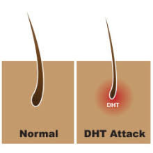 what gets rid of dht in body how to make dht hormonal acne go away naturally includes a herbal