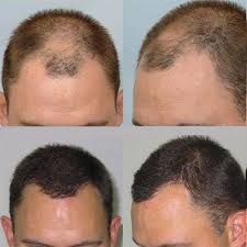 best hairtransplant in the world 20 best hair transplant in dubai images on pinterest dubai brow
