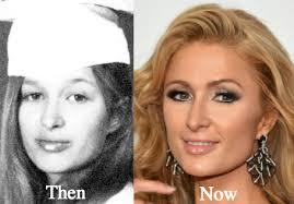 What Happened To Paris Hilton - paris hilton plastic surgery before and after photos