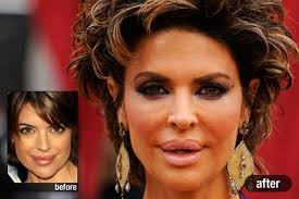 lisa renick hairstyles how much plastic surgery has lisa rinna had over the years