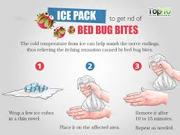 sofa bugs that bite wonderful how to get rid of bed bug bites top 10 home remedies