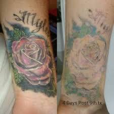 painless tattoo removal perth best tattoo 2017