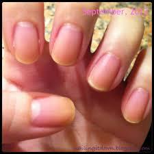nailing it down once i had yellow nails