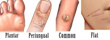 Home Remedies For Planters Warts by 15 Effective Home Remedies For Natural Wart Removal