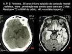 HD: <b>encefalite</b> herpética