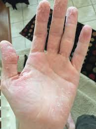 only 12 hours since my last post and my hands are now shedding