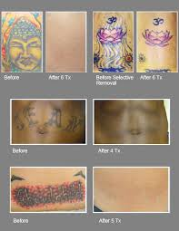 laser tattoo removal edinburg mcallen harlingen brownsville