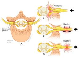 Nerves In The Knee Anatomy Brachial Plexus Injuries Orthoinfo Aaos