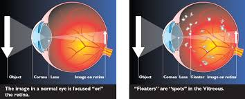 bright flashes of light in eye spots before your eyes rand eye institute