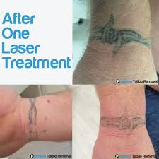north houston laser tattoo removal tx 1000 geometric tattoos ideas
