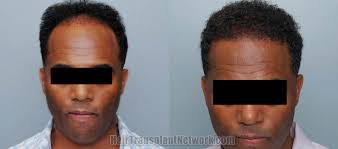 african american hair transplant before and after photos of hair transplant surgery with an african
