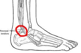 Foot Tendons Anatomy Peroneal Tendonitis Information U0026 Treatment Advice Itendonitis Com