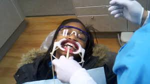 What Does An Orthodontic Assistant Do Getting Braces On How Dr Nirenblatt Orthodontist Puts Braces On