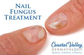 nail fungus coastal valley dermatology