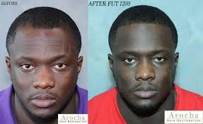 hair transplant america ethnic hair restoration treatment dallas l san antonio