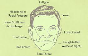 can sinus infection cause dizziness light headed are sinus infections contagious causes and prevention