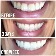 ap 24 teeth whitening toothpaste makeup