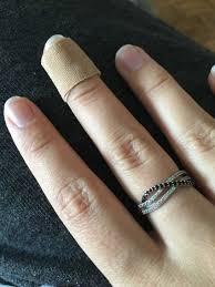 manicurist realizes black line in customer u0027s nail is cancer