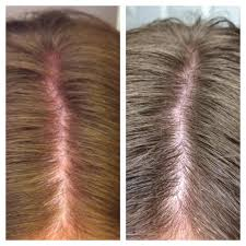 rogaine for women success stories rogaine spironolactone success 2 year update heralopecia forums