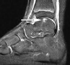 Ankle Ligament Tear Mri Aspetar Sports Medicine Journal Mri Of Ankle And Foot Injuries