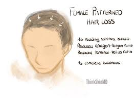 types of hair lines what s going on in hair loss think skin