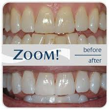 Berapa Pemutih Gigi Whitelight alat penghilang noda gigi white light pemutih gigi berkah grosir