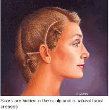 hairstyles that cover face lift scars facelift