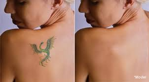 picosure laser tattoo removal los angeles laser ink laser tattoo