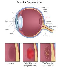 macular degeneration coleman eye center