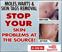 Home Remedies For Planters Warts by Wart Removal Home Remedies Carter Rogers U0027 Review On The Best