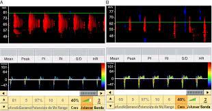 100 study guide for ultrasound neurosonology correlation of