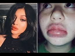 Challenge Fail Compilation Yikes Jenner S Lip Challenge Fail Compilation