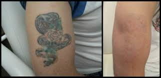 best tattoo removal lexington ky laser tattoo removal