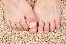 would a vitamin deficiency cause split toenails livestrong com