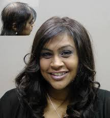 hair extensions post chemo toronto female hair replacement options hair loss solutions for women