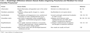 Dual Diagnosis Worksheets Idiopathic Pulmonary Fibrosis Prevailing And Evolving Hypotheses